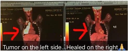 kate tumor healed copy